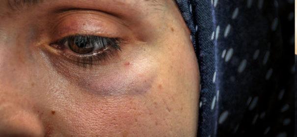 Muslimin mit Kopftuch-Islamfeindlichkeit